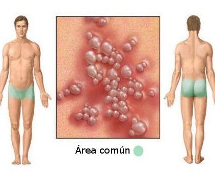 Herpes simple