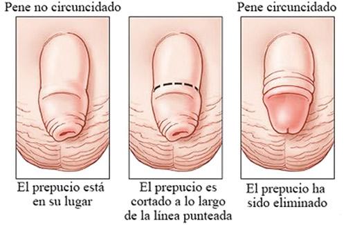Pene con y sin circuncisión.