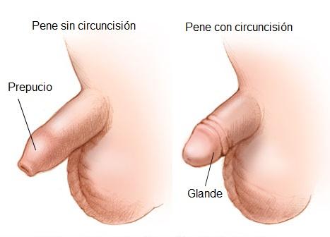 Circuncision en niños